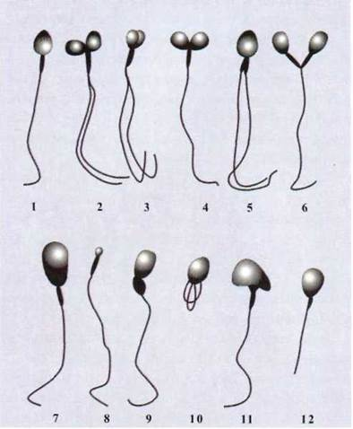 u-spermatozoidov-defekt-golovki