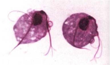 Днк trichomonas vaginalis