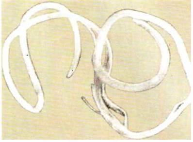 фото глистов круглых